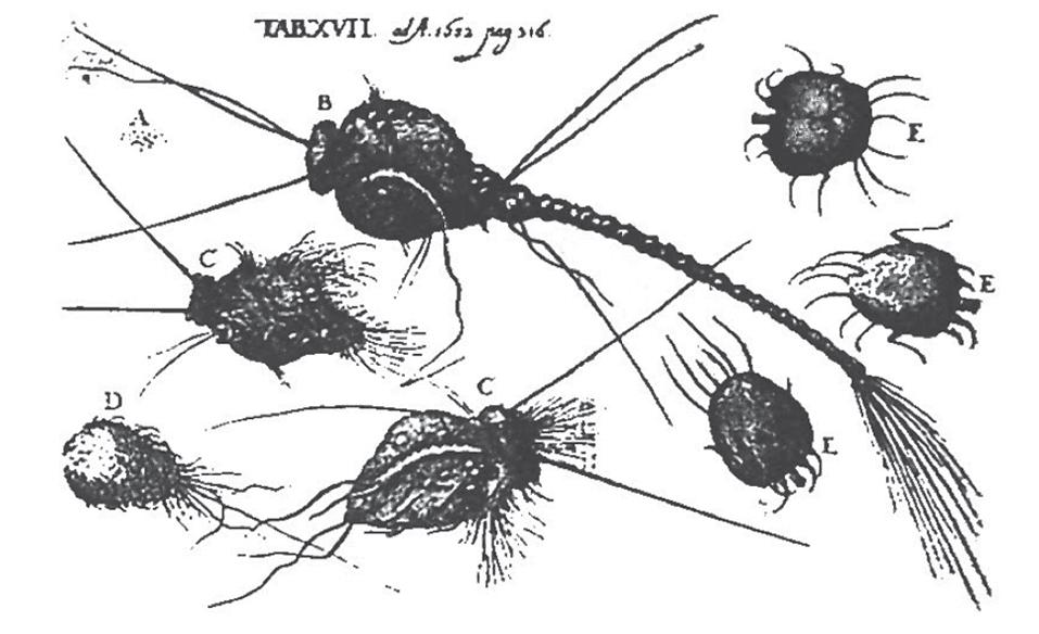 Morgellons Disease